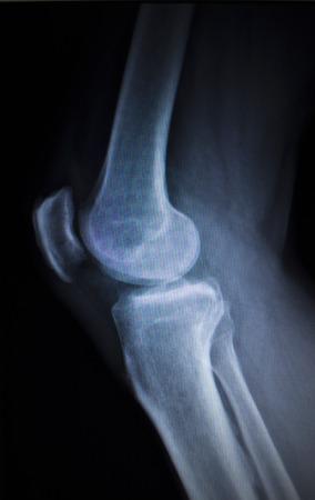 meniscus: X-ray orthopedic medical CAT scan of painful knee meniscus injury leg in traumatology hospital clinic.