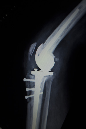 prosthetics: X-ray orthopedic medical CAT scan of painful knee meniscus injury leg in Traumatology hospital clinic with prosthetics Trauma implant screws. Stock Photo