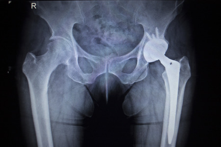 osteoporosis: Imagen de la radiografía de exploración de las articulaciones de la cadera con la cabeza del implante de reemplazo articular de cadera ortopédica y tornillos en esqueleto humano en tonos grises azules. Escaneada en traumatología ortopedia clínica hospital de cirugía. Foto de archivo