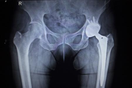 squelette: X-ray image de balayage des articulations de la hanche de la hanche orthopédiques tête de l'implant de remplacement des articulations et des vis en squelette humain dans des tons gris bleu. Numérisée en orthopédie traumatologie de l'hôpital clinique de chirurgie.