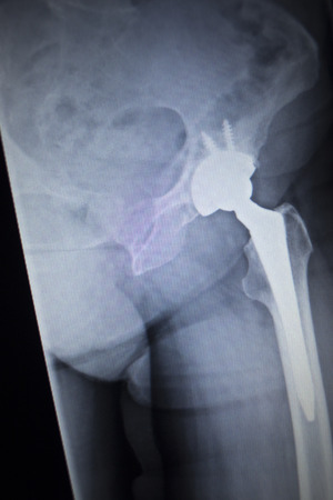 hip replacement: X-ray scan  image of hip joints with orthopedic hip joint replacement implant head and screws in human skeleton in blue gray tones. Scanned in orthopedics traumatology surgery hospital clinic.