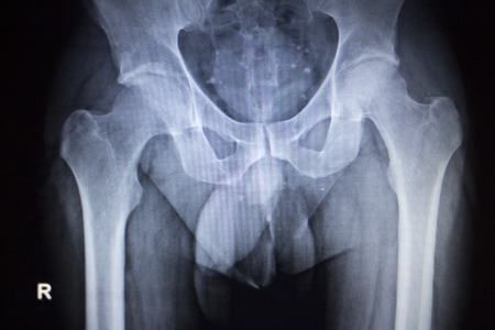 X-ray scan  image of hip joints human skeleton in blue gray tones. Scanned in orthopedics traumatology surgery hospital clinic.