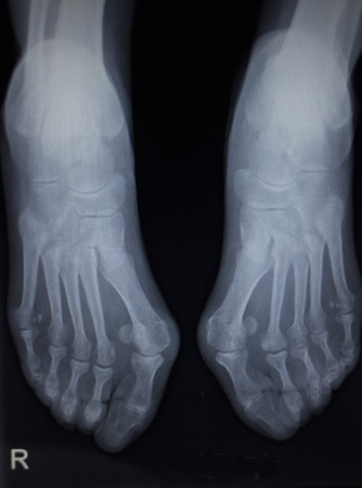 anterior: X-ray orthopedic medical anterior posterior AP CAT scan of painful foot injury in traumatology hospital clinic.