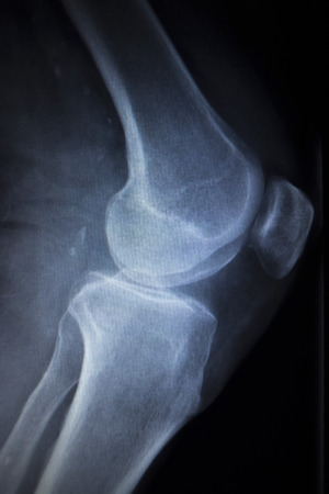 traumatology: X-ray orthopedic medical CAT scan of painful knee meniscus injury leg in traumatology hospital clinic.