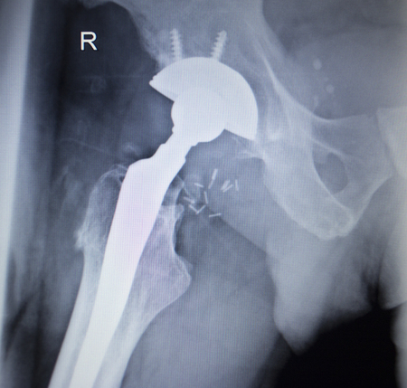 prosthetic equipment: X-ray scan  image of hip joints with orthopedic hip joint replacement implant head and screws in human skeleton in blue gray tones. Scanned in orthopedics traumatology surgery hospital clinic.