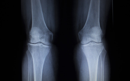 meniscus: X-ray orthopedic medical CAT scan of painful knee meniscus injury leg in traumatology hospital clinic.