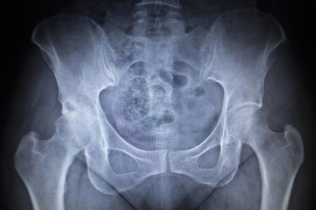 orthopedics: Imagen de la radiograf�a de exploraci�n de las articulaciones de la cadera esqueleto humano en tonos grises azules. Escaneada en traumatolog�a ortopedia cl�nica hospital de cirug�a.