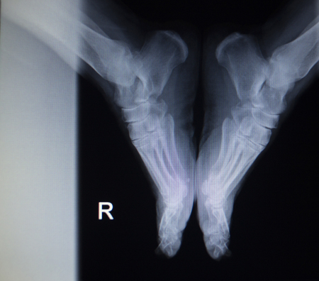 cat scan: X-ray orthopedic medical CAT scan of painful foot injury in traumatology hospital clinic.