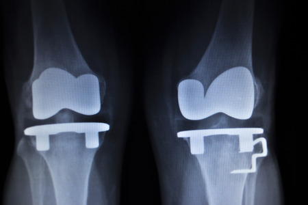 X-ray orthopedic medical CAT scan of painful knee meniscus injury leg in Traumatology hospital clinic with prosthetics Trauma implant. photo