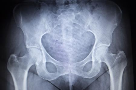 orthopaedics: Imagen de la radiograf�a de exploraci�n de las articulaciones de la cadera esqueleto humano en tonos grises azules. Escaneada en traumatolog�a ortopedia cl�nica hospital de cirug�a.