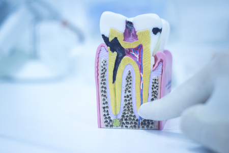 prosthetic equipment: Dental tooth model cast showing decay casing pain, enamel and roots in profile interior of tooth photo. Stock Photo