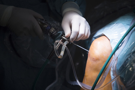 외상 정형 외과 병원 응급 수술실 드립 유체 관의 무릎 찢어진 반월 상 연골 관절 경 조작 사진을 준비했다.