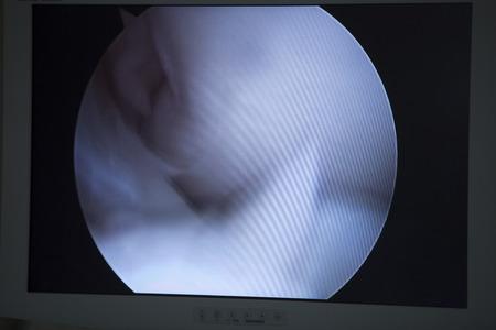 Traumatology orthopedic surgery hospital emergency operating room prepared for arthroscopy of knee viewin screen operation photo. Stock Photo