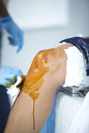 disinfecting: Traumatology orthopedic surgery hospital emergency operating room prepared for knee torn meniscus arthroscopy operation photo of nurse disinfecting knee in disinfection process. Stock Photo