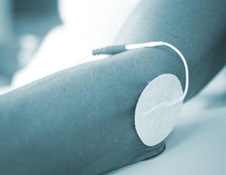 fisioterapia: Paciente de la mu�eca del brazo la mano en impulso el�ctrico fisioterapia tratamiento rehabiliation estimulaci�n electro de una lesi�n en la cl�nica hospital con est�mulo el�ctrico conectado con yeso. Foto de archivo