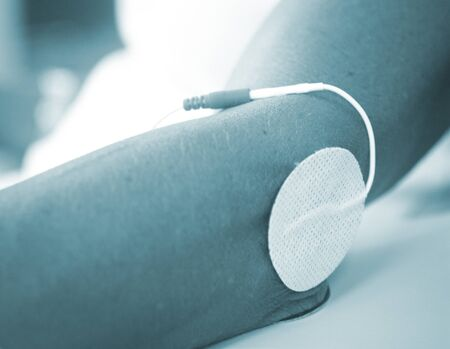 stimulus: Patient hand arm wrist in electro physiotherapy electrical impulse stimulation rehabiliation treatment from injury in hospital clinic with electrical stimulus attached with plaster. Stock Photo