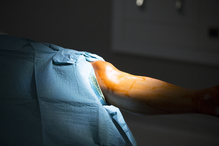 traumatology: Traumatology orthopedic surgery hospital emergency operating room prepared for knee torn meniscus arthroscopy operation photo.