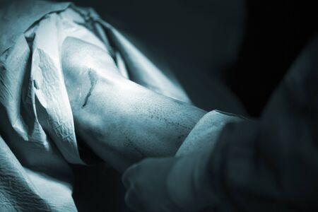 meniscus: Traumatology orthopedic surgery hospital emergency operating room prepared for knee torn meniscus arthroscopy operation photo.