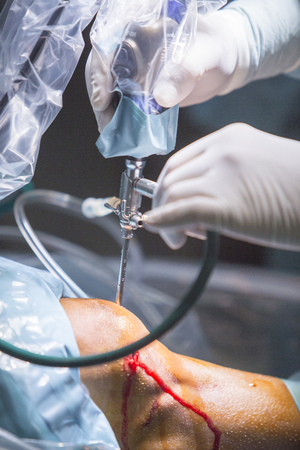 orthopedic: Traumatology orthopedic surgery hospital emergency operating room prepared for knee torn meniscus arthroscopy operation photo of drip fluids tube, arthroscope, arthroscopy camera and probe. Stock Photo