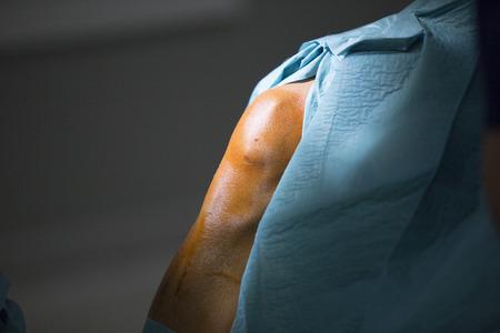 Traumatology orthopedic surgery hospital emergency operating room prepared for knee torn meniscus arthroscopy operation photo.