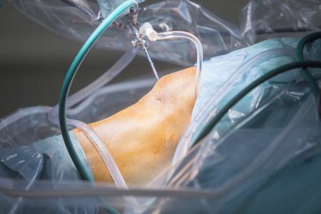Traumatology orthopedic surgery hospital emergency operating room prepared for knee torn meniscus arthroscopy operation photo of drip fluids tube, arthroscope, arthroscopy camera and probe. 写真素材