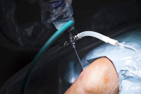 traumatology: Traumatology orthopedic surgery hospital emergency operating room prepared for knee torn meniscus arthroscopy operation photo of drip fluids tube. Stock Photo