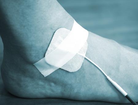 fisioterapia: Paciente de la muñeca del brazo la mano en impulso eléctrico fisioterapia tratamiento rehabiliation estimulación electro de una lesión en la clínica hospital con estímulo eléctrico conectado con yeso. Foto de archivo