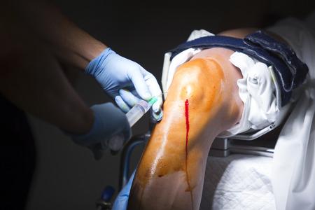 anaesthetic: Traumatology orthopedic surgery hospital emergency operating room prepared for knee torn meniscus arthroscopy operation photo anaesthetic injection. Stock Photo