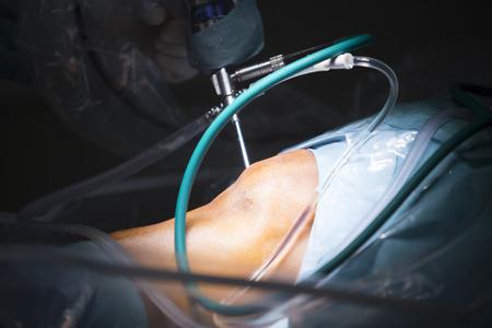 Traumatology orthopedic surgery hospital emergency operating room prepared for knee torn meniscus arthroscopy operation photo of drip fluids tube. Stock Photo