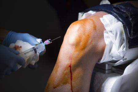 Traumatology orthopedic surgery hospital emergency operating room prepared for knee torn meniscus arthroscopy operation photo anaesthetic injection. Stock Photo
