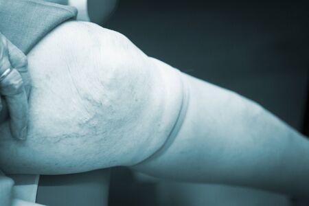 fisioterapia: la pierna del paciente en la clínica de fisioterapia de la terapia física en el centro médico de sala de rehabilitación del hospital.