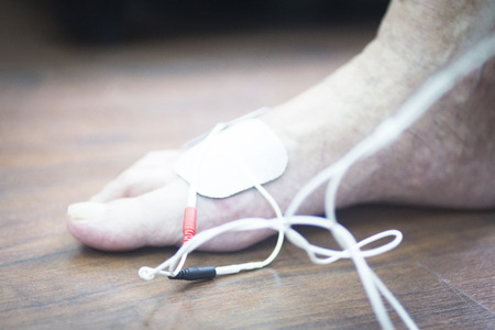 stimulus: Patient foot, leg and ankle in electro physiotherapy electrical impulse stimulation rehabiliation treatment from injury in hospital clinic with electrical stimulus attached with plaster. Stock Photo