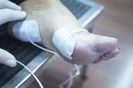 impulse: Patient foot, leg and ankle in electro physiotherapy electrical impulse stimulation rehabiliation treatment from injury in hospital clinic with electrical stimulus attached with plaster. Stock Photo