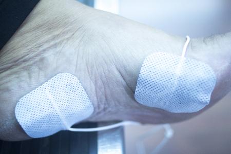 fisioterapia: Paciente pie, la pierna y el tobillo en el impulso eléctrico tratamiento rehabiliation estimulación electro fisioterapia de una lesión en la clínica hospital con estímulo eléctrico conectado con yeso. Foto de archivo
