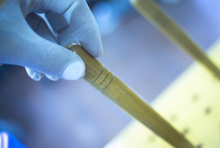 coordinacion: Mano, mu�eca y dedos de fisioterapia tratamiento de rehabilitaci�n de una cirug�a ortop�dica en un hospital sala de fisioterapeutas de la cl�nica girando un tornillo para construir la fuerza en sus dedos, manos y mu�ecas m�sculos y mejorar la coordinaci�n.