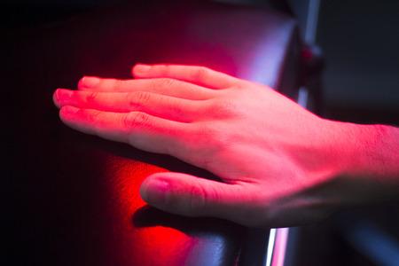 fisioterapia: La mano del paciente en el tratamiento t�rmico de fisioterapia rojo bajo la luz caliente.