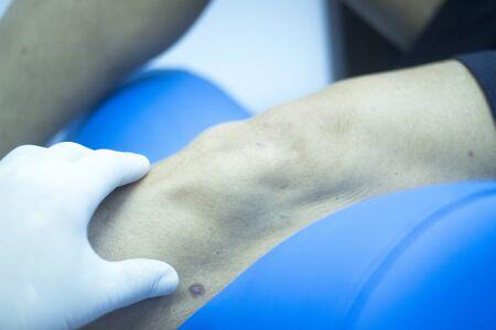 fisioterapia: la pierna del paciente en la clínica de fisioterapia de la terapia física en el centro hospitalario sala de rehabilitación médica y la mano del fisioterapeuta usando guantes estériles. Foto de archivo