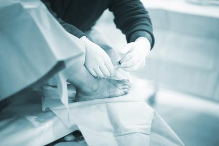 traumatology: Hospital emergency orthopedics and traumatology surgery operating room medical clinic real life photo in foot, ankle and leg arthroscopy orthopedic operation.