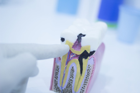 toothache: Dental tooth model cast showing decay causing pain and toothache, enamel and roots in profile interior of tooth photo in dental clinic surgery office.