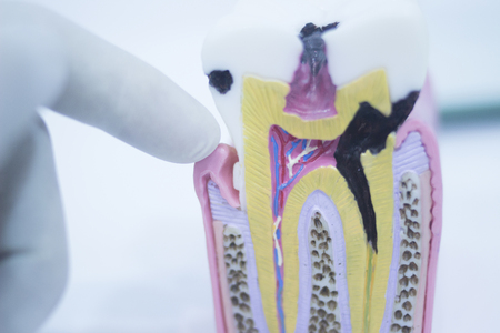 anatomical model: Dental tooth model cast showing decay causing pain and toothache, enamel and roots in profile interior of tooth photo in dental clinic surgery office.