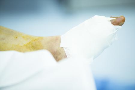 ortopedia: Hospital de Ortopedia de emergencia y cirugía traumatología quirófano clínica médica foto de la vida real en el pie, el tobillo y la operación ortopédica artroscopia pierna.