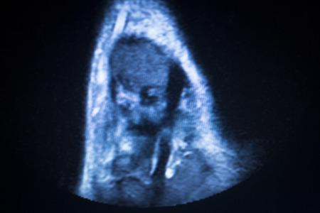 resonancia magnetica: Resultados de las pruebas de resonancia magn�tica por im�genes de resonancia magn�tica de exploraci�n m�dica que muestran ligamentos, cart�lagos y secci�n transversal de los huesos en el esqueleto humano de tobillo.