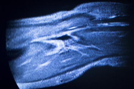 resonancia magnetica: im�genes por resonancia magn�tica de exploraci�n m�dica codo de prueba de resonancia magn�tica que muestran ligamentos, cart�lagos y secci�n transversal de huesos en el esqueleto humano.