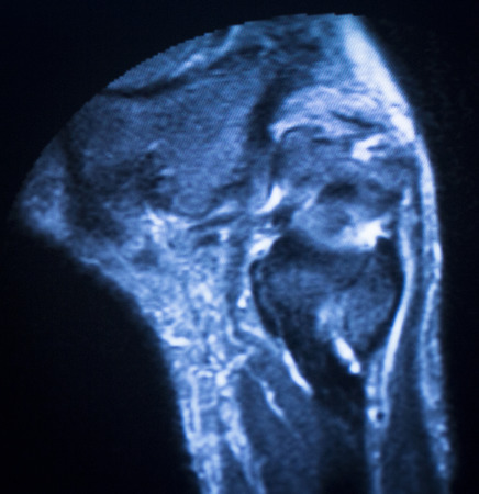 medical imaging: MRI magnetic resonance imaging medical scan test results showing ligaments, cartilege and cross section of bones in human skeleton of ankle. Stock Photo