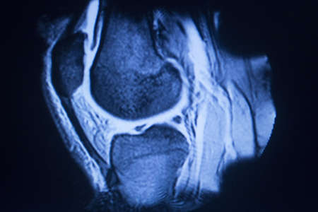 cross leg: MRI magnetic resonance imaging medical scan test results showing knee joint, meniscus, femur, thigh and calf of leg, ligaments, cartilege and cross section of bones in human skeleton. Stock Photo