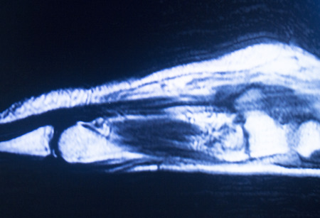 ligaments: MRI magnetic resonance imaging medical scan test results showing ligaments, cartilege and cross section of bones in human skeleton o hand and fingers.