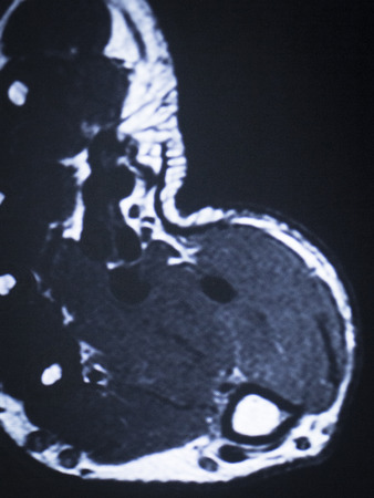 resonancia magnetica: im�genes por resonancia magn�ticas RM resultados de las pruebas de exploraci�n m�dica de los pies y dedos de los pies que muestran ligamentos, cart�lagos y secci�n transversal de huesos en el esqueleto humano.