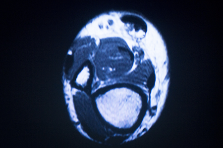 resonancia magnetica: resultados de las pruebas de resonancia magn�tica de resonancia magn�tica de exploraci�n m�dica que muestran el antebrazo del brazo ligamentos, cart�lagos y secci�n transversal de huesos en el esqueleto humano.