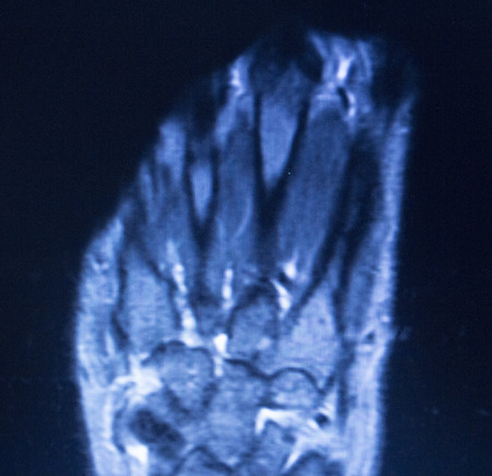Imágenes Por Resonancia Magnética MRI Resultados De Las Pruebas De ...
