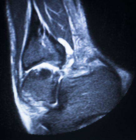 ligaments: MRI magnetic resonance imaging medical scan test results showing ligaments, cartilege and cross section of bones in human skeleton of ankle. Stock Photo